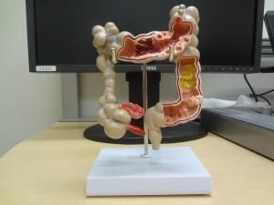 """""""大腸がん""""で亡くなられる方急増しています"""