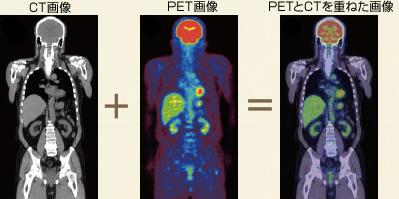 PET検査のメリットのイメージ画像