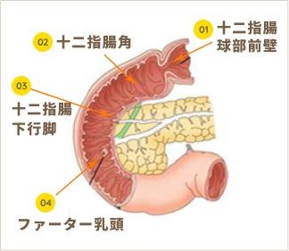 胃の説明画像