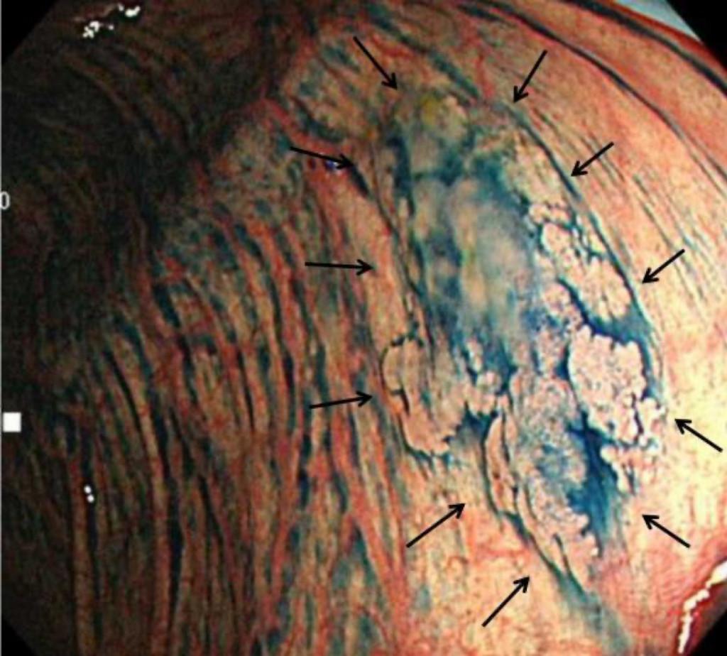 インジゴカルミンを散布した内視鏡写真